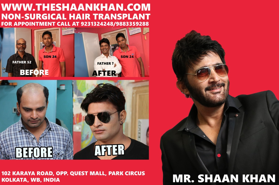 Shaan khan hair designer salon additional hair transplant hair picture pmusecretfo Gallery